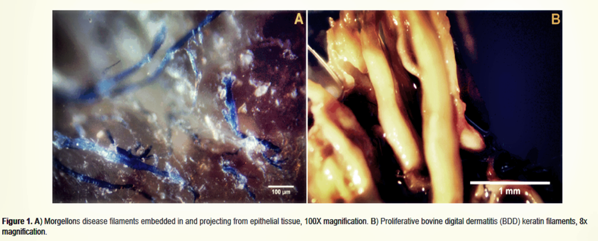 Evidence Mounting that Morgellons Disease is an Emerging Infectious