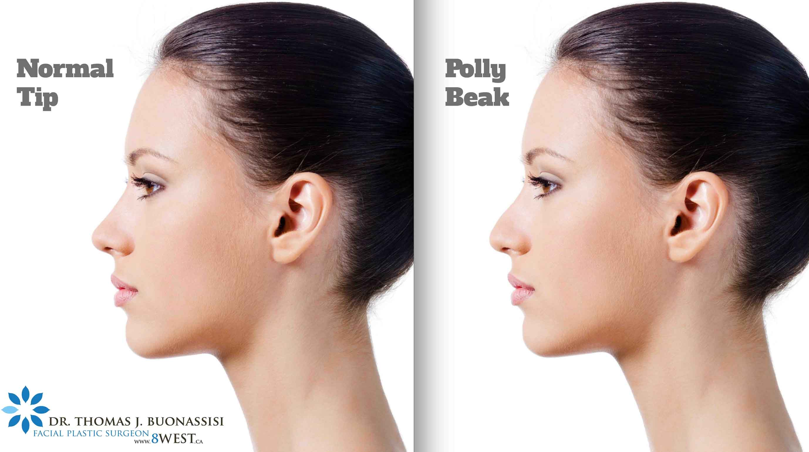 Rhinoplasty Specialist Dr. Buonassisi Releases A New Guide