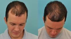 Acell Hair Regrowth Injection Therapy before and after photos