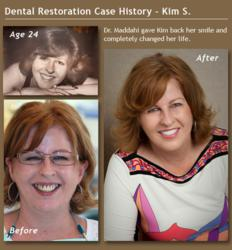 Beverly Hills Cosmetic Dentist's Anti Aging Dentistry