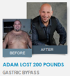 Adam lost 200 Pounds with Gastric Bypass