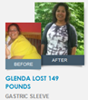 Glenda lost 149 Pounds with Gastric Sleeve