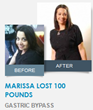 Marissa lost 100 Pounds with Gastric Bypass