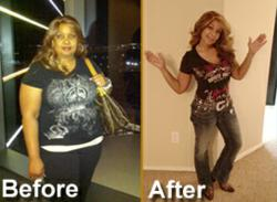 Gastric Bypass Surgery San Antonio Success Story Patient Stacy
