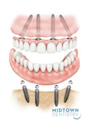 fixed bridge on dental implants