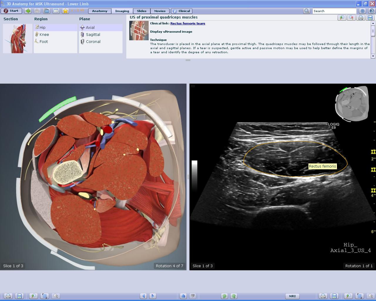 Primal Pictures Launches 3d Anatomy For Musculoskeletal Ultrasound