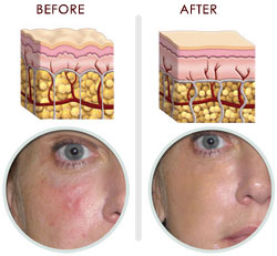 Skin - Before and After RG-Cell use