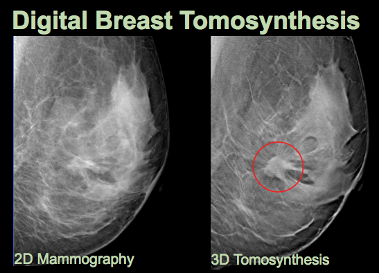 Digital tomosynthesis reconstruction
