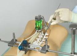 mazor robotic spine surgery houston texas