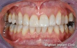 dental implant treatment for missing teeth