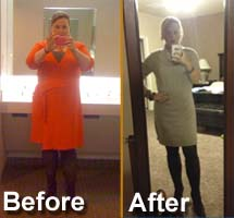Extraordinary Weight Loss With Lap Band Procedure