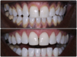 Professional teeth cleaning and laser removal for dark gum pigmentation. Actual Patient