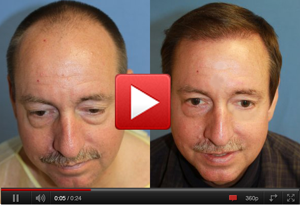 before-and-after-hair-transplant-los-angeles-hair-transplant.fw.png