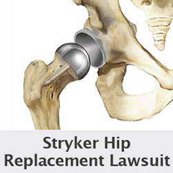 stryker hip replacement lawsuits