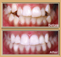 6 Month Smiles Available at South Charlotte Dentistry, Charlotte NC