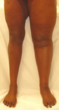 Patient displaying symptoms, swelling of the ankle and foot, of Deep Vein Thrombosis (DVT) in her right leg.