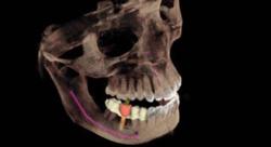 Galileos 3D Scan