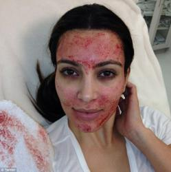 Kim K gets Vampire Facial, an age-defying facelift using her blood peculiarmagazine