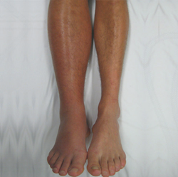 Deep Vein Thrombosis affected Legs. DVT Awareness Month