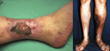 Deep Vein Thrombosis, Ulcers, Ulcerations, Best Vein Specialists Winston-Salem, NC