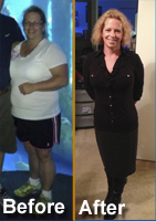 Texas Bariatric Specialists Is Eager To Announce That A