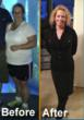 Texas Bariatric Specialists is Eager to Announce that a Sleeve...