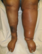 Deep Vein Thrombosis, DVT, Blood Clots, Ulcerations, Swollen