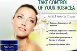 Rosacea Cream Reviews