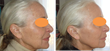 Hybrid Energy Technology for dermal volumizing -  before and after results 10 days after 2nd treatment