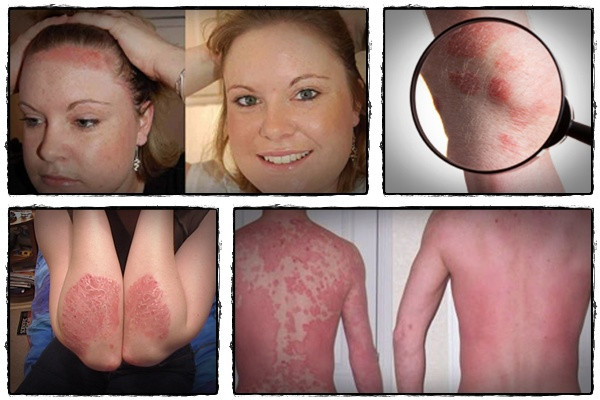 Psoriasis free for life review heah product review center 1