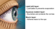 Turner Eye Institute Introduces New Treatment for Evaporative Dry Eye...