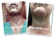 Before and After Micro Needling  with Dermapen®