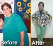 Successful Gastric Bypass Procedure Performed by Dr. Nilesh Patel...