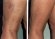 Miami Vein Center Educates Public About Safe Treatments for Varicose...