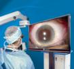 TrueVision® 3D Surgical Receives CE Mark Approval of 3D Computer-Aided Guidance Applications for Cataract Surgery