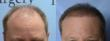 Dr. Michael Vories Performs Largest FUE Scalp Hair Transplant
