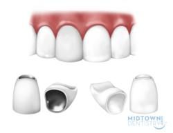 midtown dentistry provides zirconia crowns