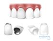 Midtown Dentistry Now Using Diamond Hard Zirconia Crowns