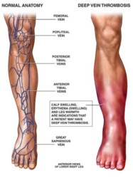 vein disease, vein specialist, lafayette IN, DVT, Deep Vein Thrombosis