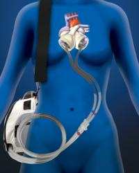 SynCardia, Total Artificial Heart, artificial heart, donor hear, heart failure, heart transplant