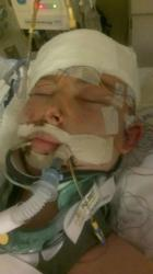 Ben Wolverton in coma
