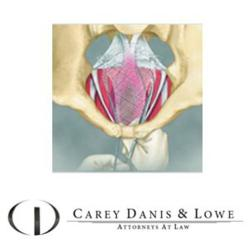 Vaginal Mesh Lawyers at Carey Danis & Lowe