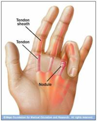 Causes of Trigger Finger