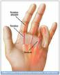 Repetitive Stress Injury Treatment: Trigger Finger Splint from...