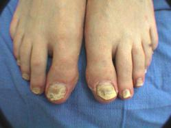 Zetaclear Toenail Fungal Treatment