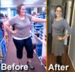 Patient's Migraines Disappear after Remarkable Gastric Sleeve...