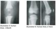 Human Knee X-Ray