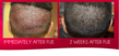 Before and After Follicular Unit Extraction Procedure