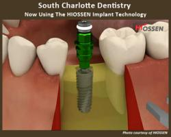 Reduce Dental Implant Risk at South Charlotte Dentistry