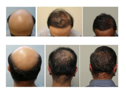 uGraft for severe baldness
